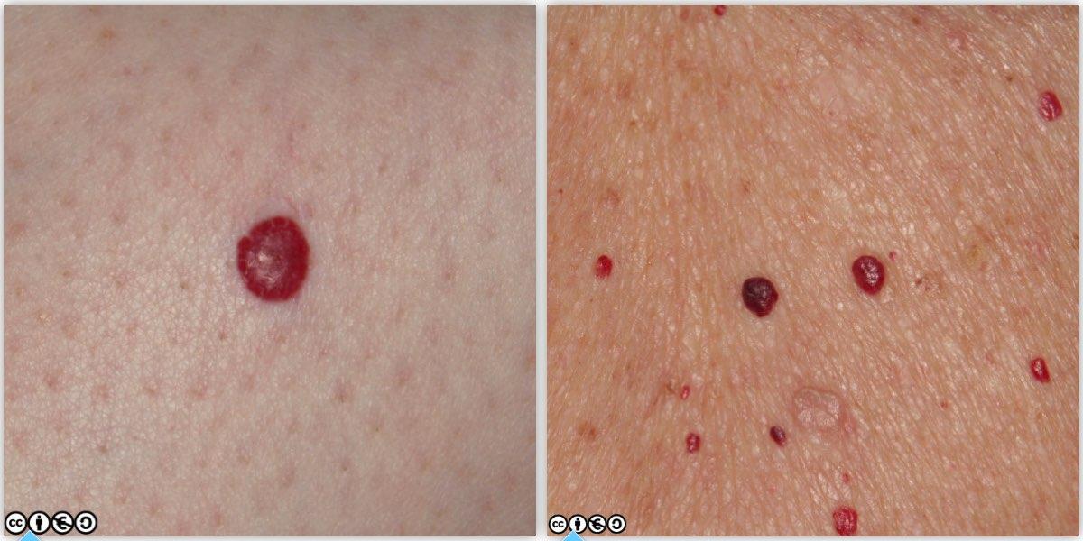 Papilloma virus keratosis, Warts and skin cancer
