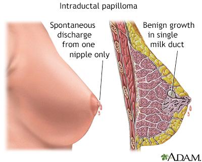 Hpv symptoms yellow discharge. Bts Altfel de Boli - Hpv symptoms yellow discharge