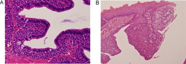 Ductal papilloma of salivary gland origin, Papillomas of salivary gland