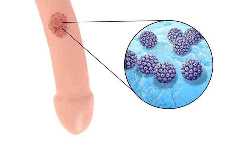 Come si manifesta il papilloma virus negli uomini.