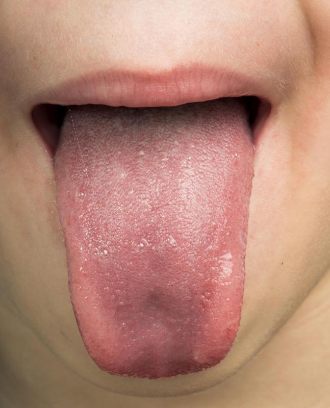 papillomavirus on the tongue
