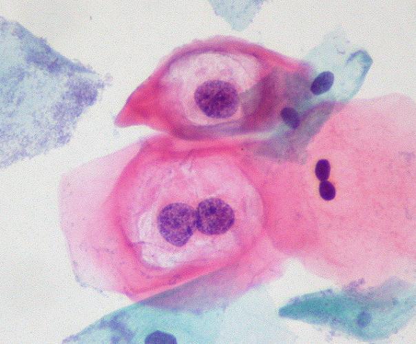 viermi inelati la om human papillomavirus infection and getting pregnant