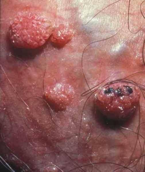 papillomavirus urticaire