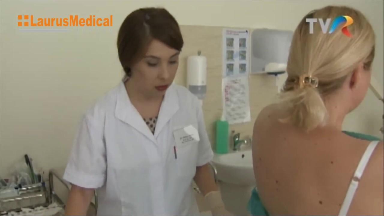 Crioterapia, metoda de tratament pentru veruci, cheratoze, papiloame | csrb.ro