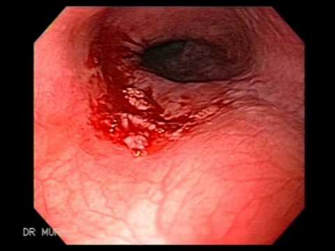 paraziți ai organelor interne și tratamentul acestora ouă de larvă helmint