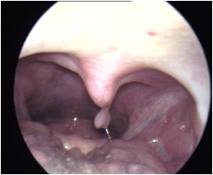 warts treatment of tricou parazitii dama
