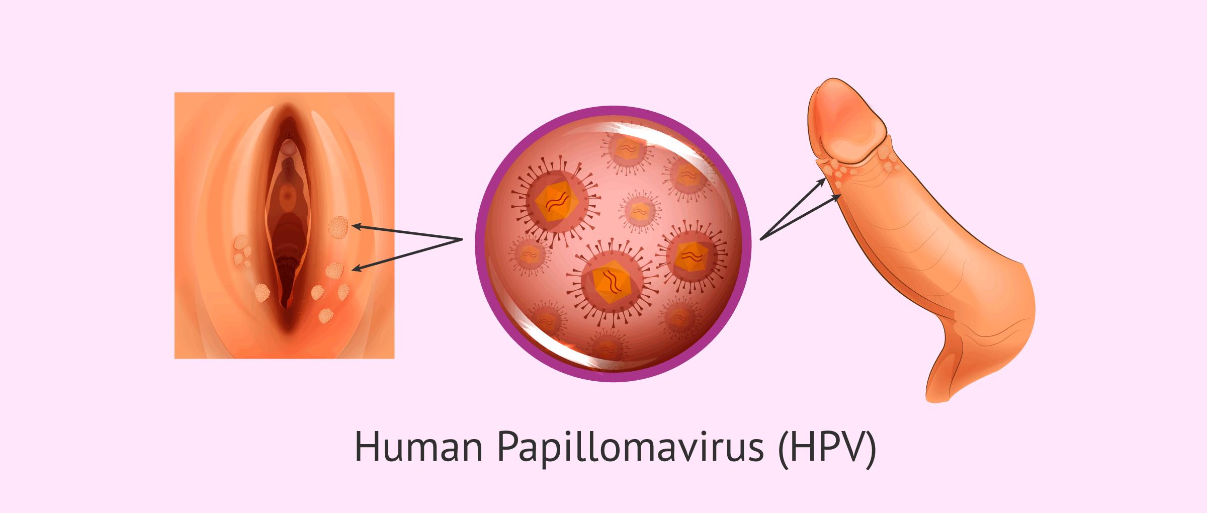 papiloma genitala oxiurose tratamento caseiro