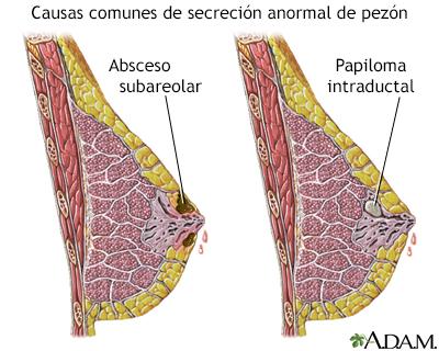 papiloma intraductal de mama sintomas virusul papilomavirus uman pe față