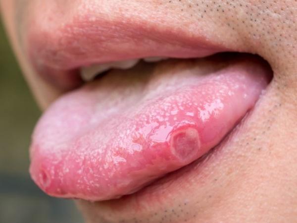 papiloma virus si sarcina