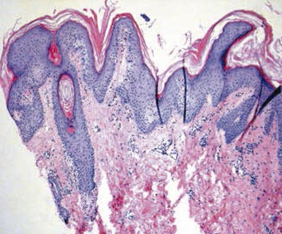 papilomatosis reticulada tratamiento