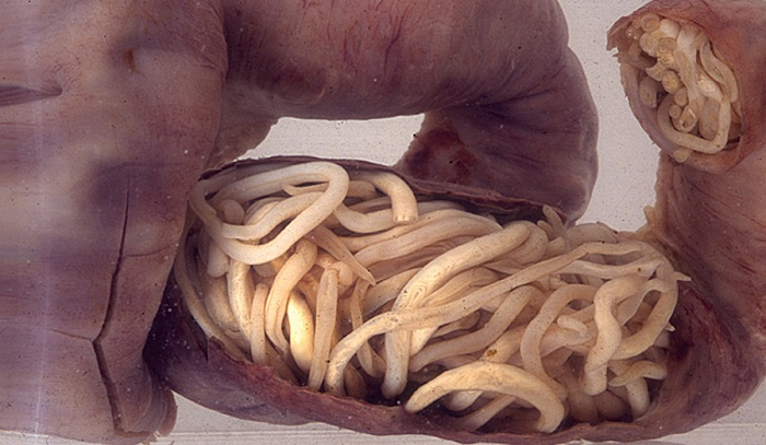 paraziti gliste kod dece