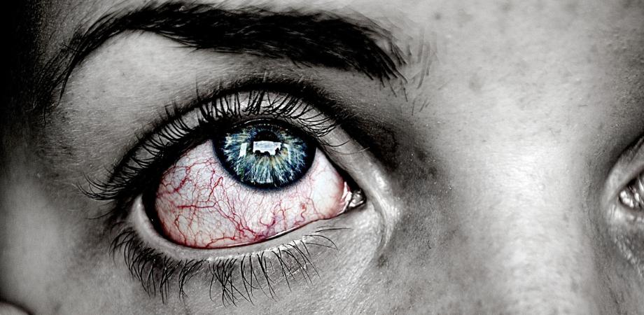 paraziti tratamentul simptomelor ochilor