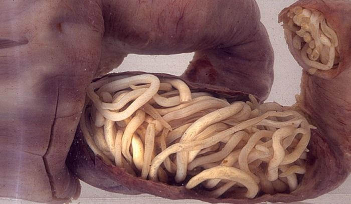 paraziti u crevima coveka simptomi