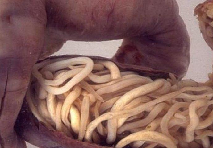 Paraziti u crijevima. Paraziti kod covjeka simptomi