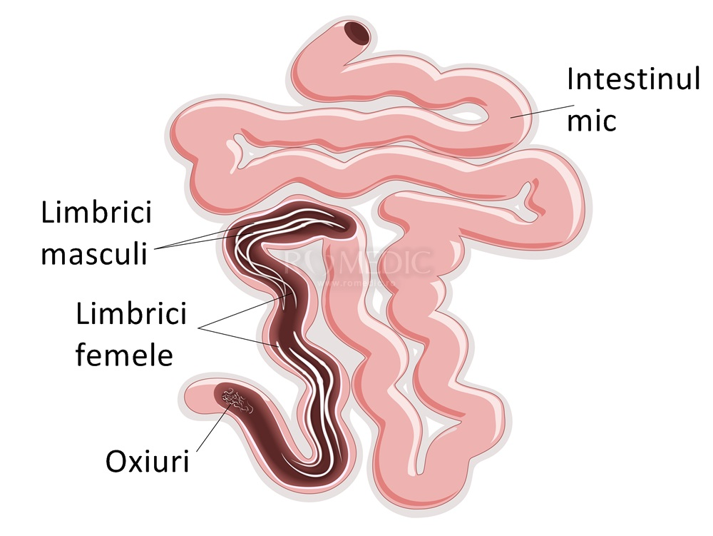 pastile pentru prevenirea viermilor și viermilor cum să înțelegeți că aveți helmintiază