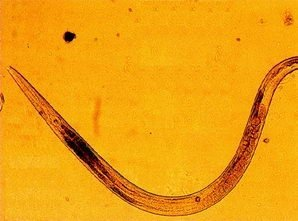 pentru viermisori intestinali