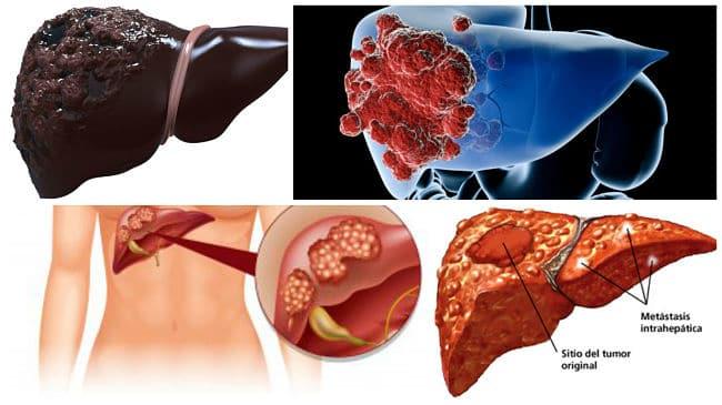papilomavirusuri umane cu conținut ridicat de oncogen