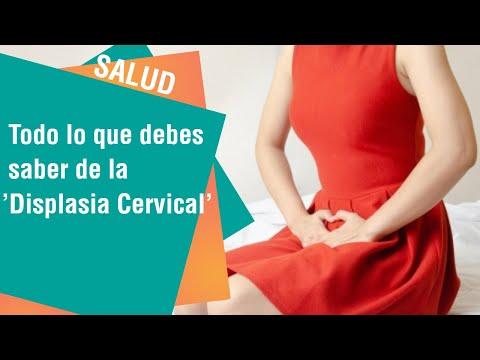 Papilloma virus displasia grave. Displasia Cervical - Virus de papiloma humano numero 16
