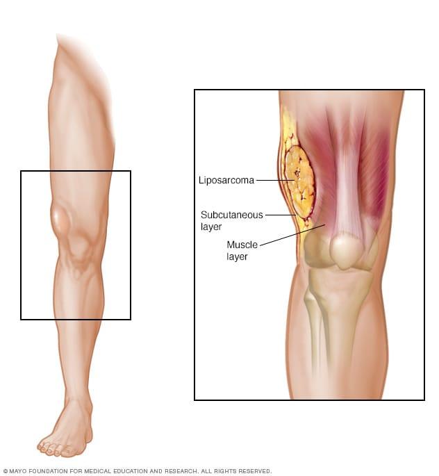 Sarcoma cancer in leg, Sarcoma cancer in leg symptoms