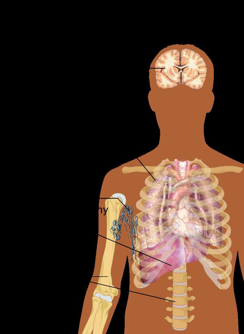 Endometrial cancer lower back pain