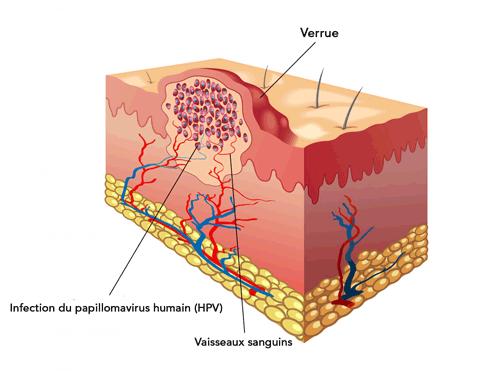 Virus del papiloma genital femenino