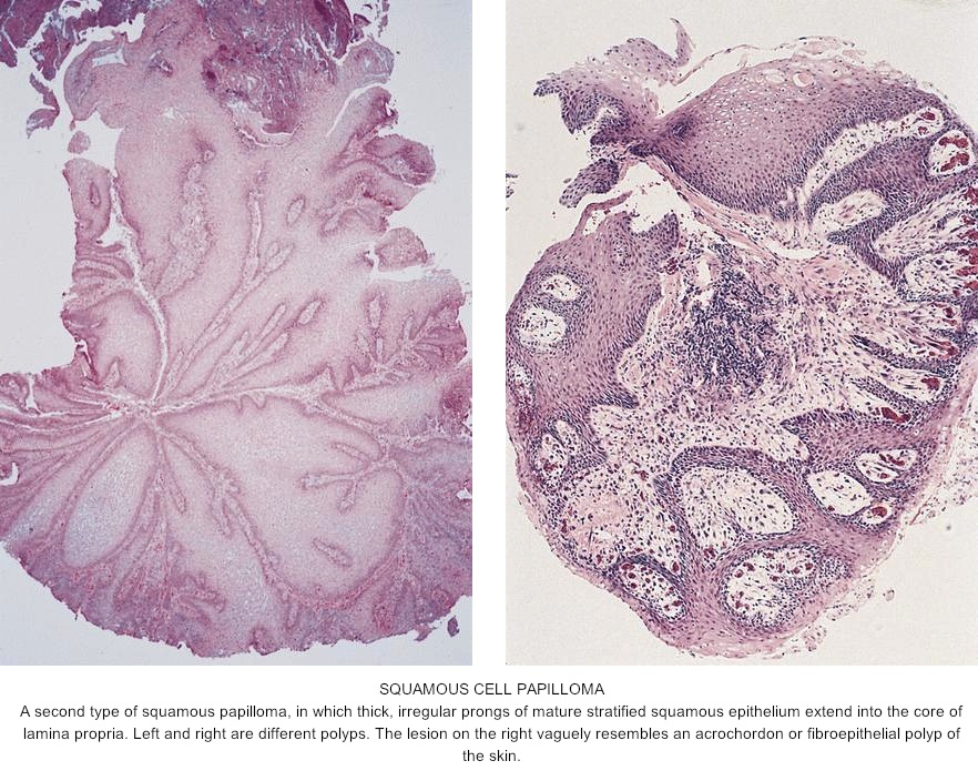 Esophageal papilloma cause - Esophageal papilloma hpv