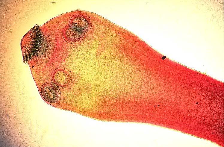 Trichinella spiralis - generalitati, analize medicale recomandate | Bioclinica