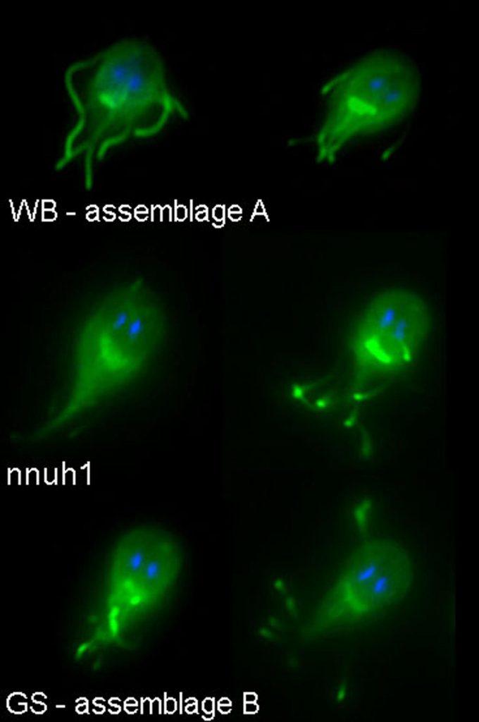 transmisia zoonotică a giardiei recenzii ale managementului parazitului bioresonance