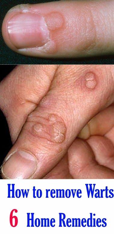 terapie cu helmint în boala crohn