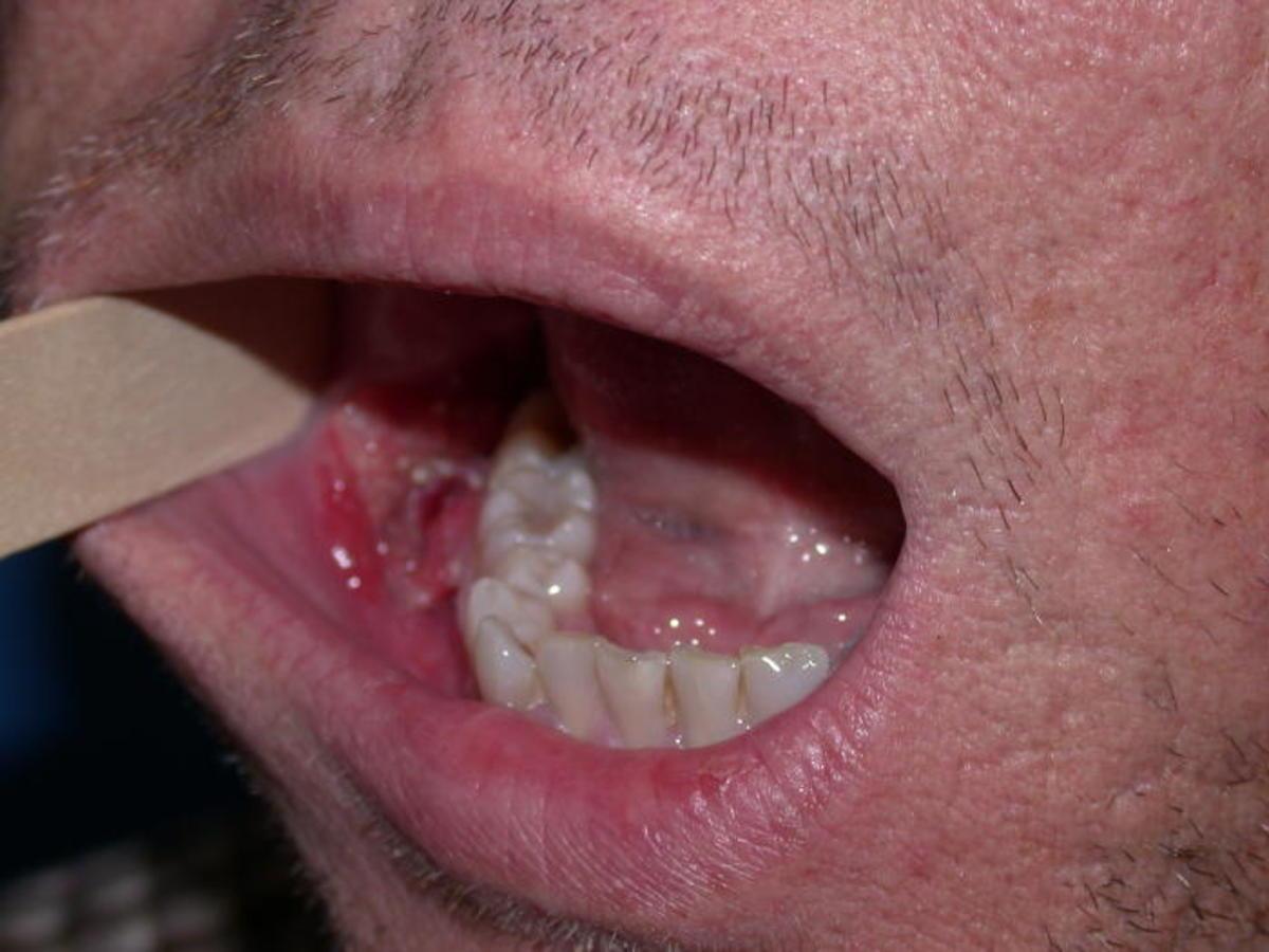 Tratament oral HPV