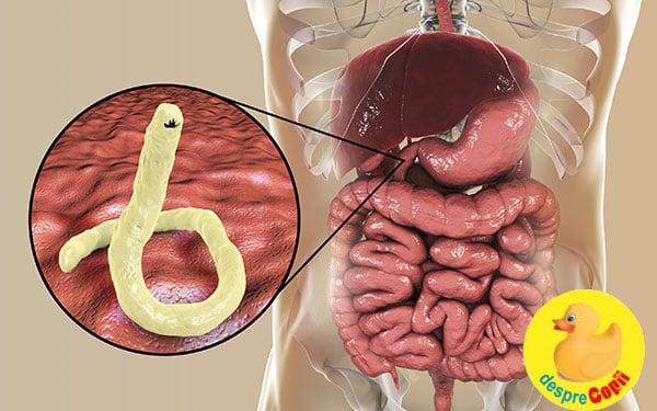 how to remove human papillomavirus paraziti pe piele