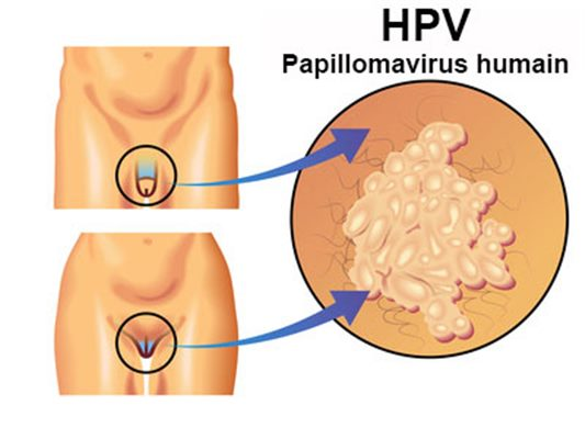 vaccin papillomavirus fievre apres uite papiloame