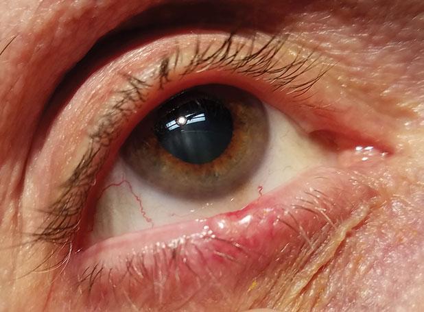 Verruche da papilloma virus immagini