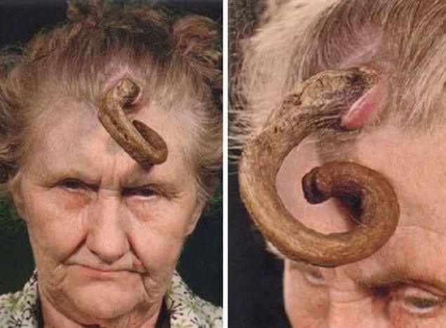 vindecă mâncărimi de viermi