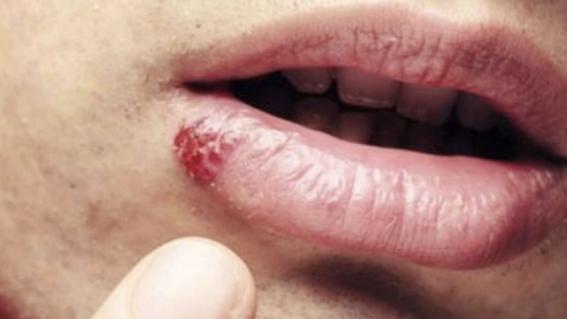 El virus del papiloma humano en el ano