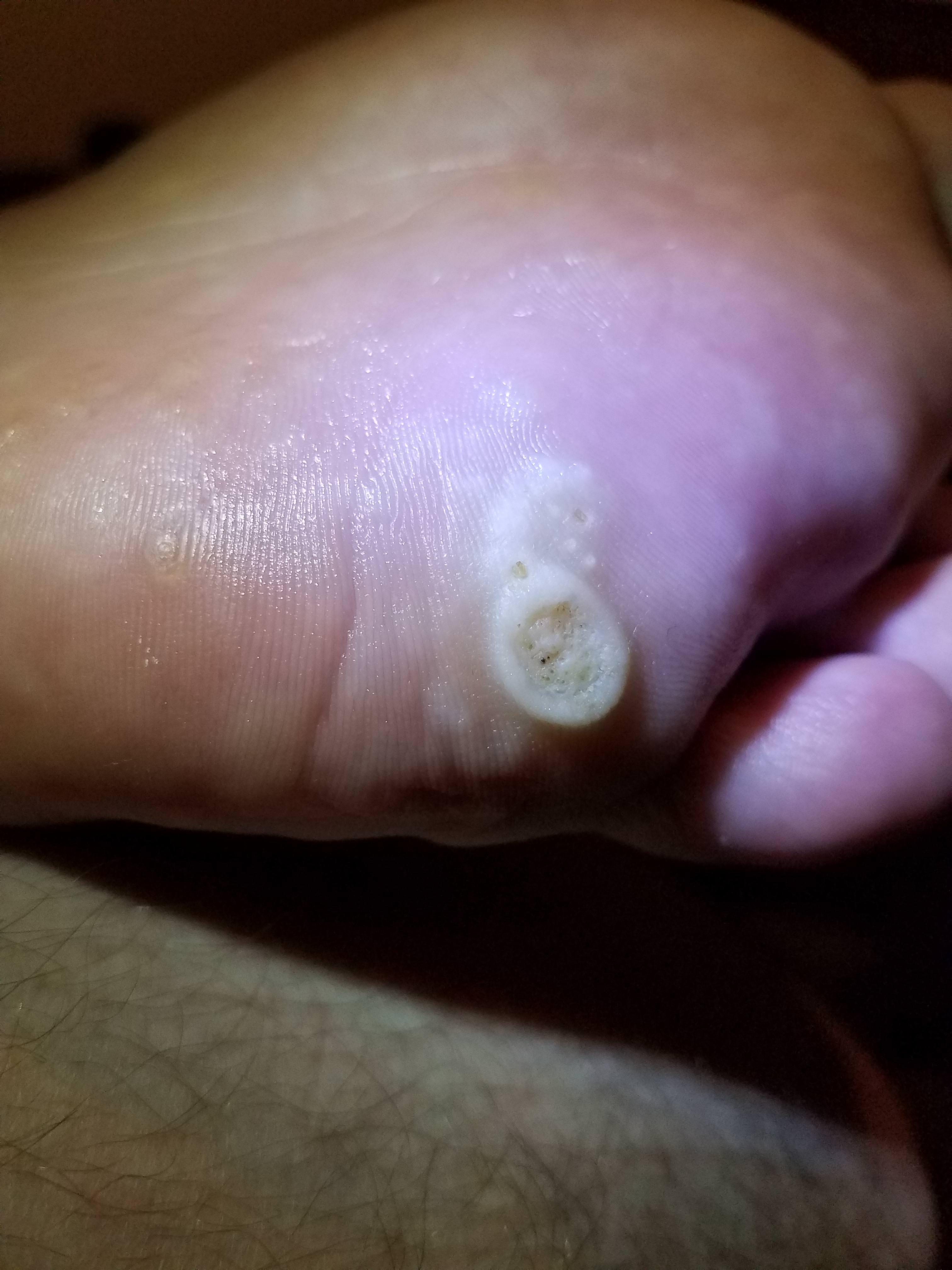 Verruca foot soak. Wart on foot salicylic acid