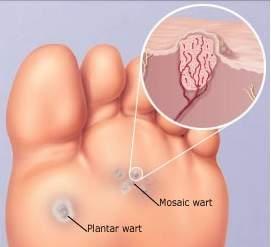 Wart removal foot doctor. Quando vaccinarsi contro papilloma virus