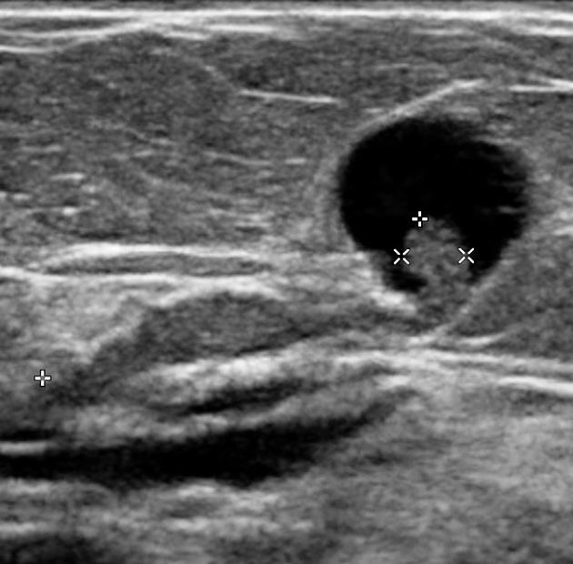 papiloma intraductal dor dimensiune giardia micron