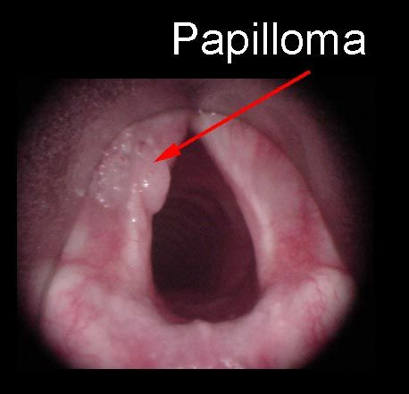 rectal cancer query human papillomavirus hpv website