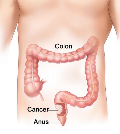 cancer la colon giardiaza în patogeneza copiilor