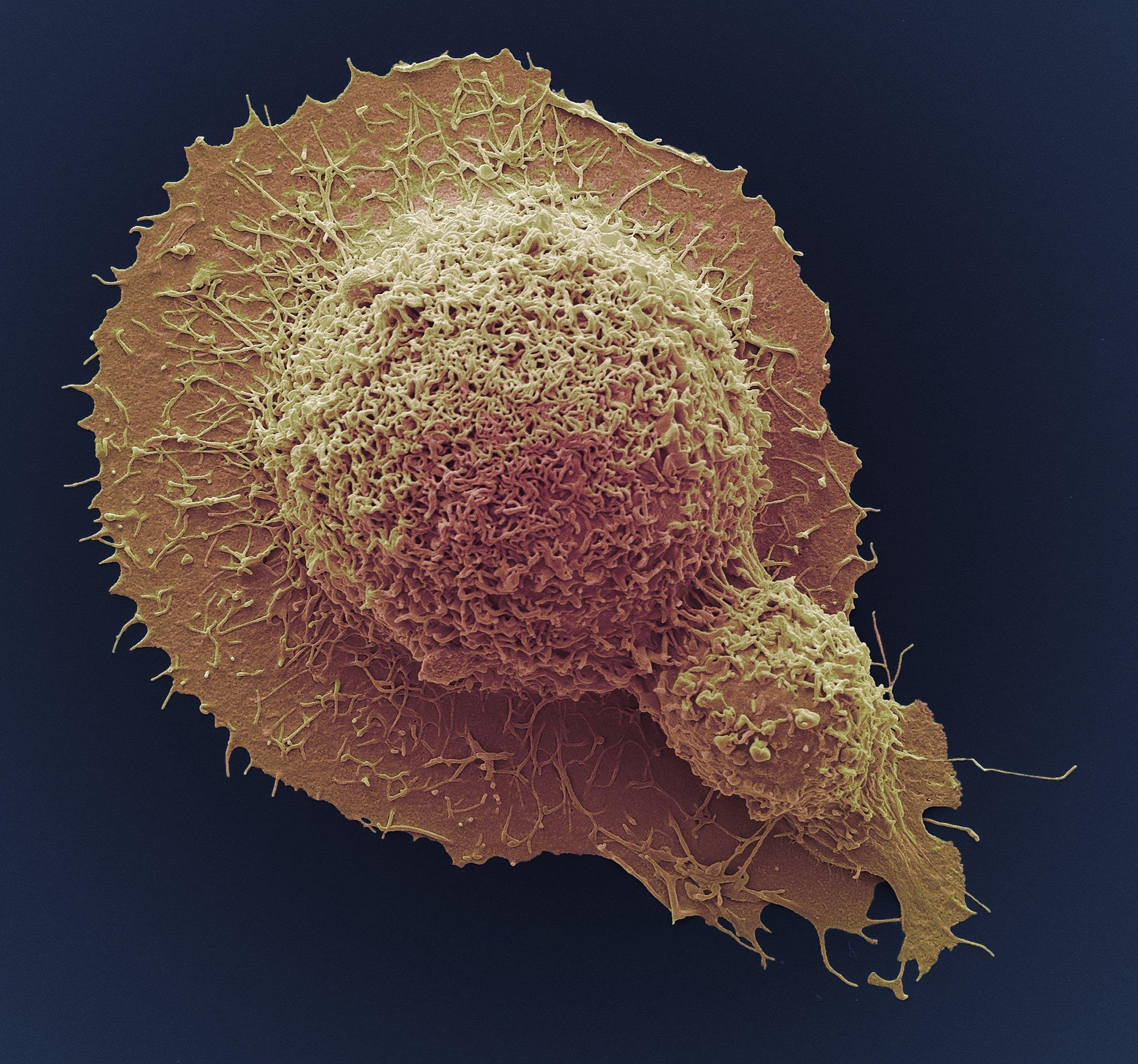 hpv cure breakthrough virus del papiloma su tratamiento