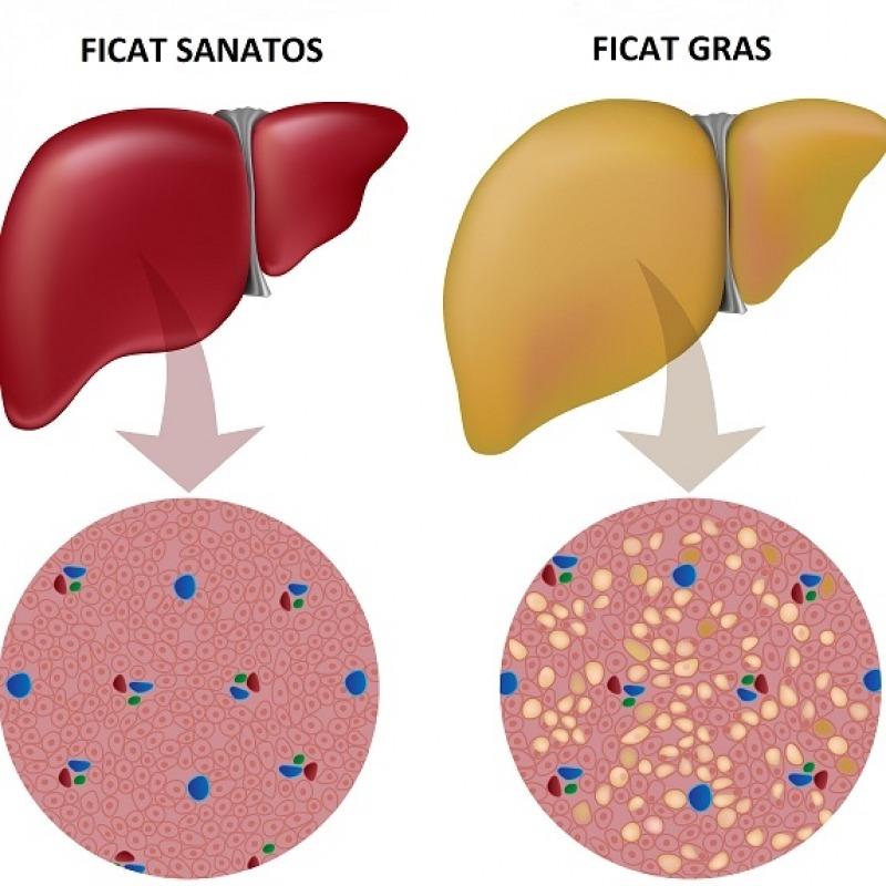 Ficatul gras: cum îl recunoști, ce îl cauzează și cum poate fi prevenită boala