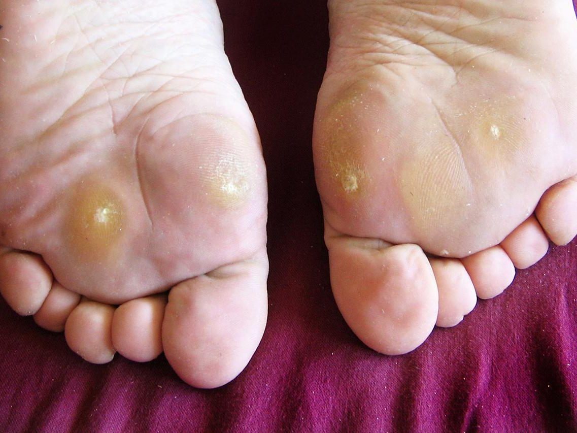 hpv virus warts on feet hunter papilloma