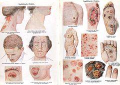 Papillomavirus hayeren