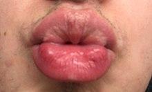 Papilloma lip icd 10, Squamous papilloma lip icd 10