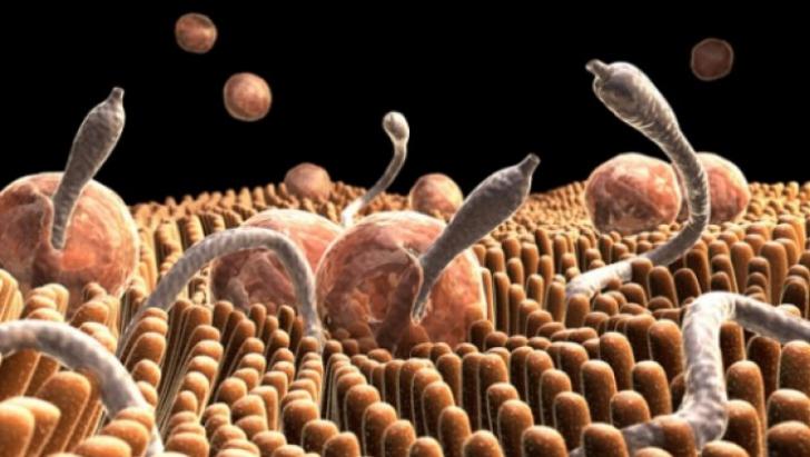 10 semne ca ai putea avea un parazit în corp