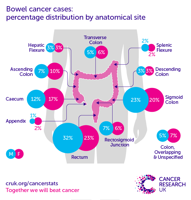 cancer colon incidence