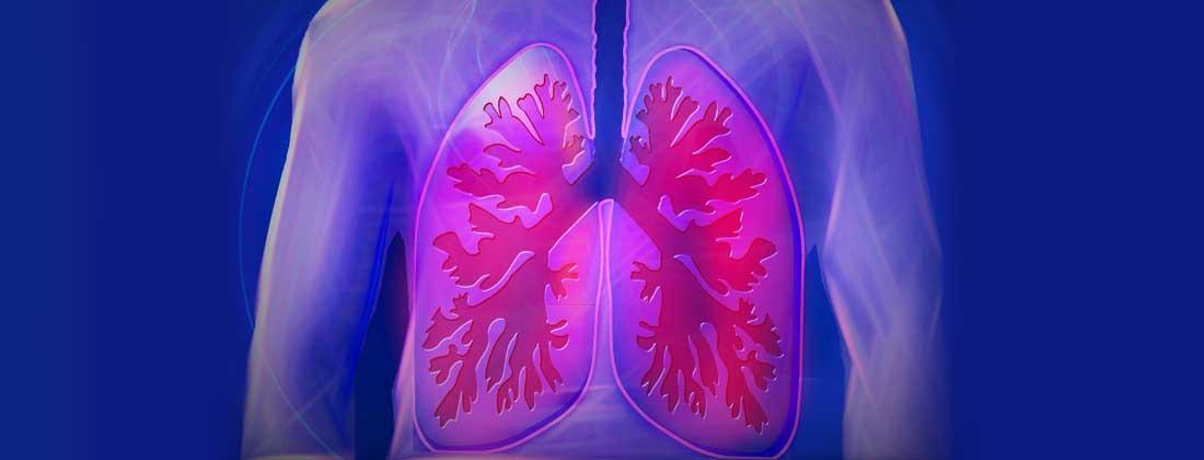 Cancerul pulmonar este aproape de vindecare!