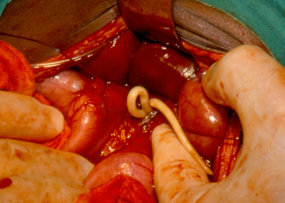 what does helminth mean in medical terms cancer pancreatic enzymes