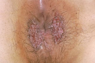 hpv warts on genital